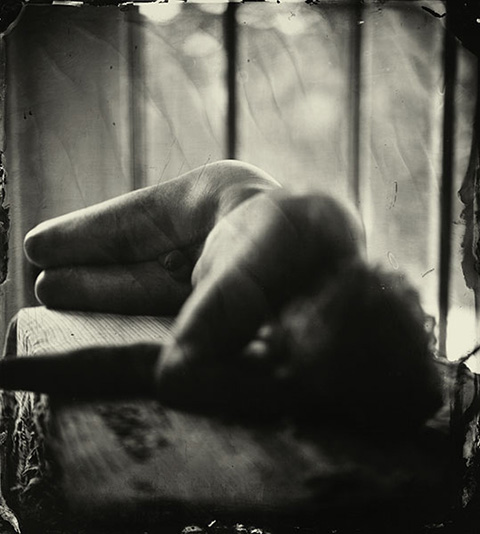 7. Sally_Mann_Proud_Flesh_01